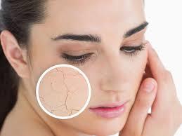dry skin pic